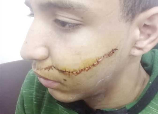 """أثناء حصة الألعاب.. طالب ثانوى يشوه وجه زميله بـ """"كتر"""" 92159810"""