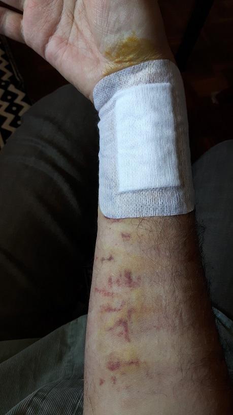 Heridas de guerra - Página 3 Aa_20117