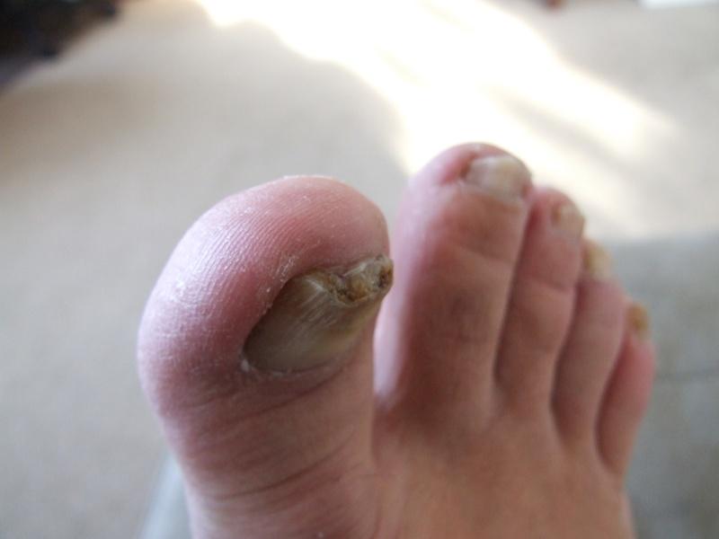 Problème champignons ongles d'orteils! - Page 2 Dscf0711