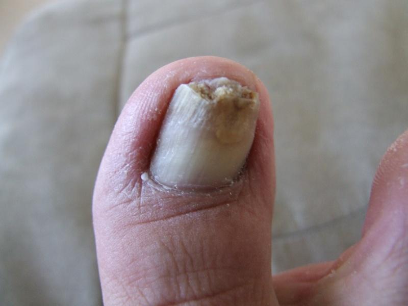 Problème champignons ongles d'orteils! - Page 2 Dscf0712