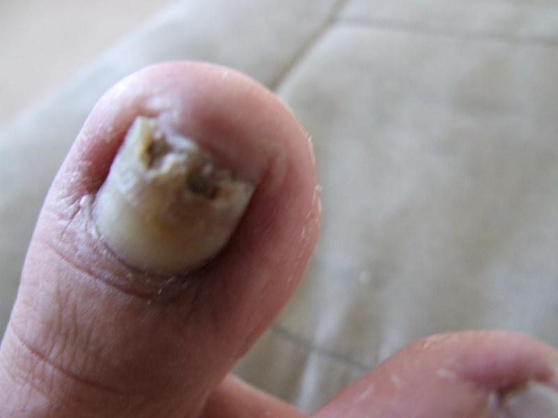 Problème champignons ongles d'orteils! - Page 2 Dscf0713