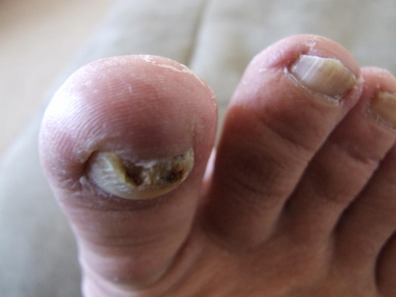 Problème champignons ongles d'orteils! - Page 2 Dscf0714