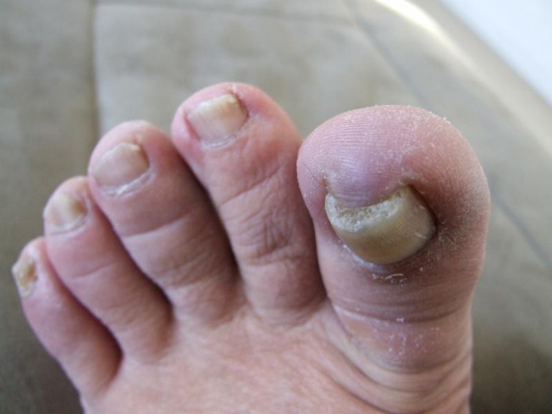 Problème champignons ongles d'orteils! - Page 2 Dscf0715