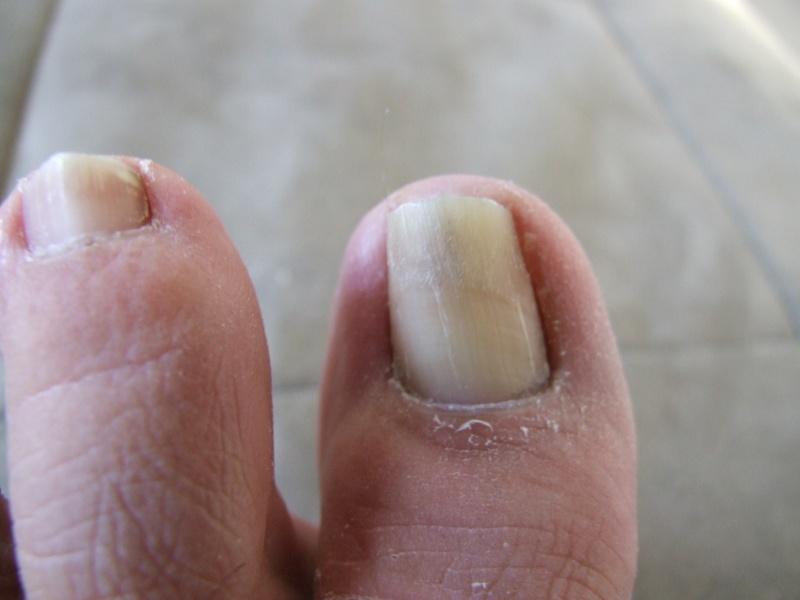 Problème champignons ongles d'orteils! - Page 2 Dscf0716