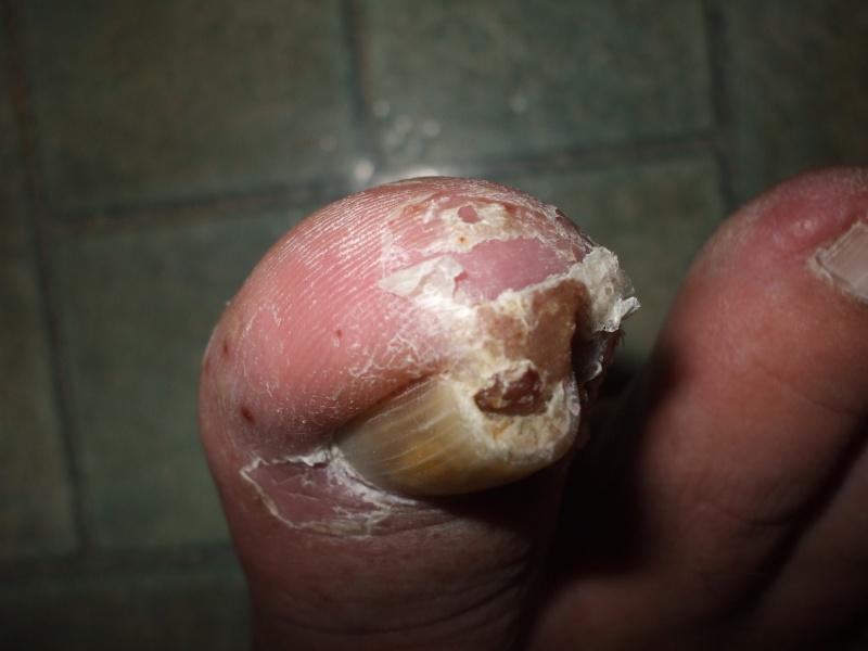 Problème champignons ongles d'orteils! - Page 2 Dscf4612