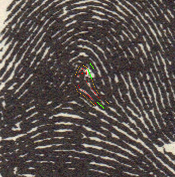 X - WALT DISNEY - One of his fingerprints shows an unusual characteristic! Walt-d17
