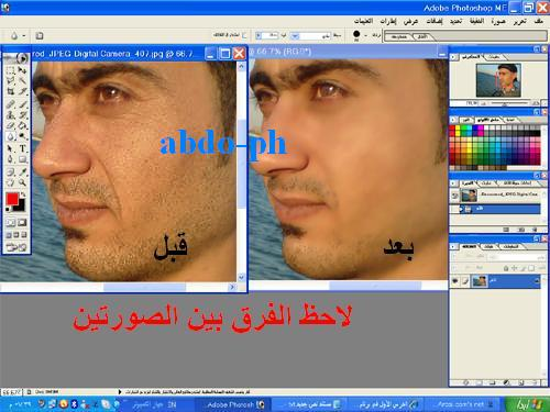اتصالات abdo-ph Abdo-p17