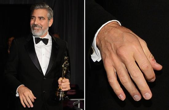 George Clooney - nail biter? Oscars10