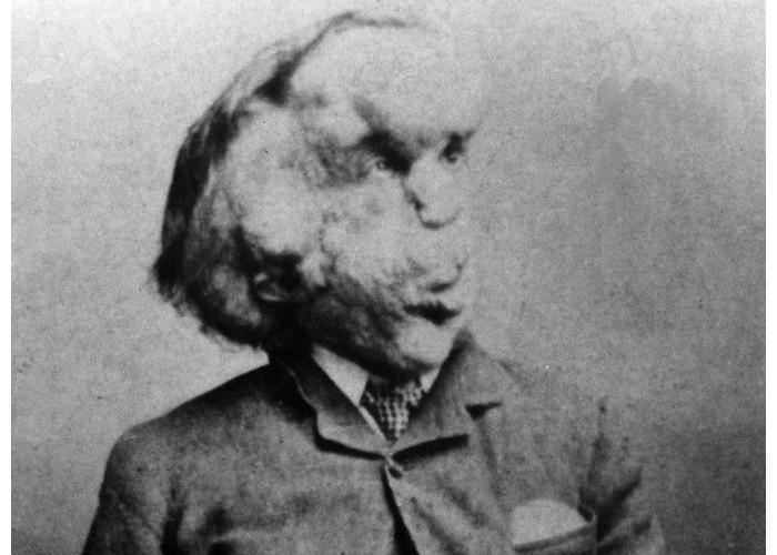 La tombe d'Elephant Man aurait été retrouvée 130 ans après sa mort 178