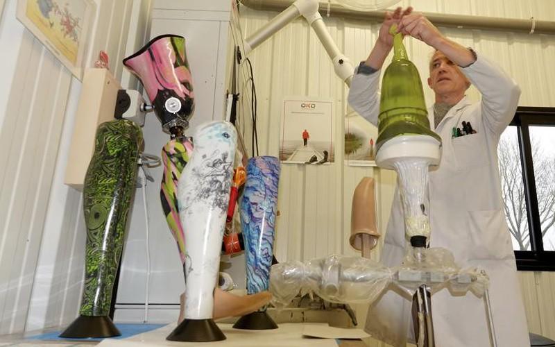 Ces Bretons fabriquent des prothèses colorées qui ont enfin du style Sans1492