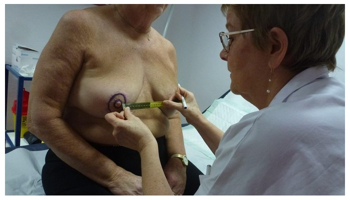 Cette infirmière redessine les seins détruits par le cancer Sans1670