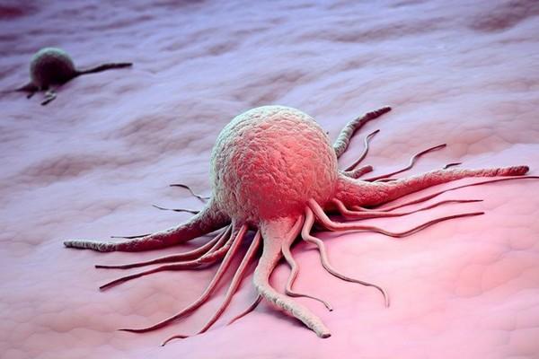 Cancer du pancréas : premier pas vers un traitement ? Sans2281