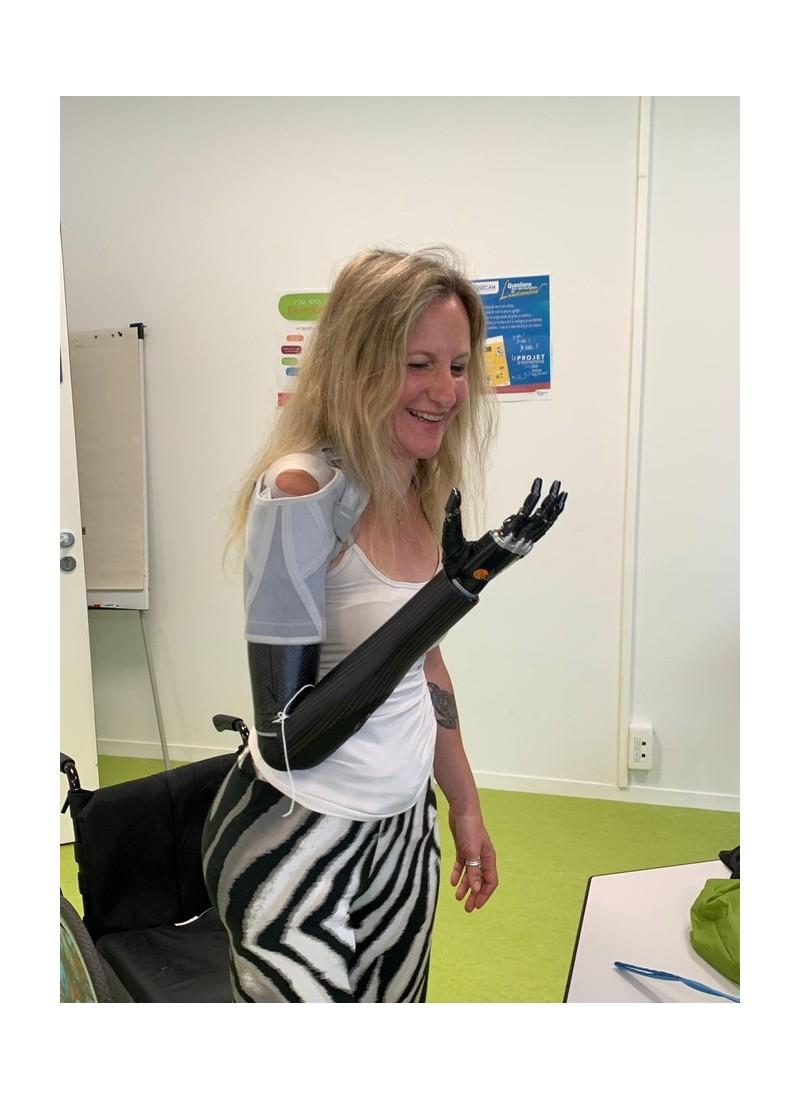 Priscille sera la première Française à bénéficier d'un bras bionique, la Nantaise témoigne Sans2365