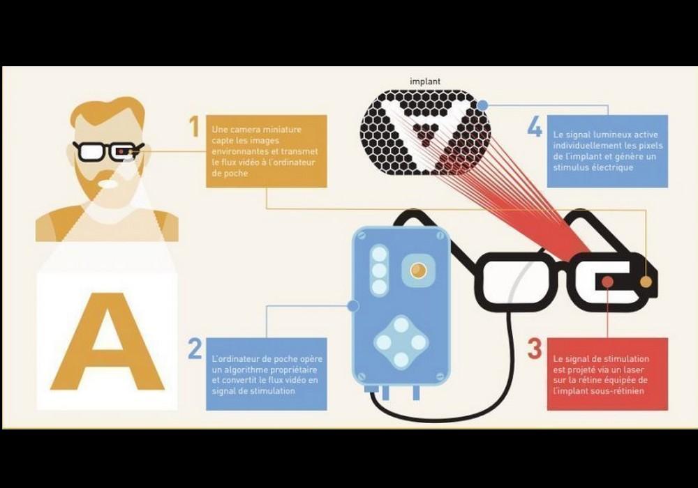 DMLA : et si un implant rétinien permettait de retrouver la vue ? Sans4353