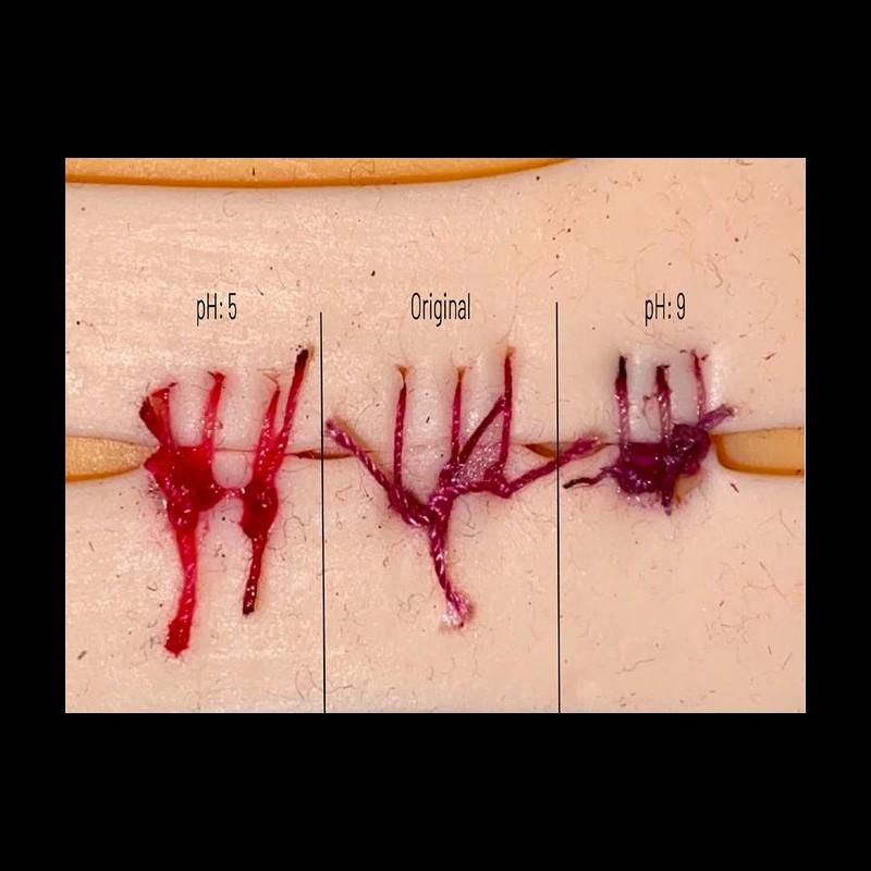 À seulement 17 ans, elle invente des fils de suture qui changent de couleur en cas d'infection Sans5841