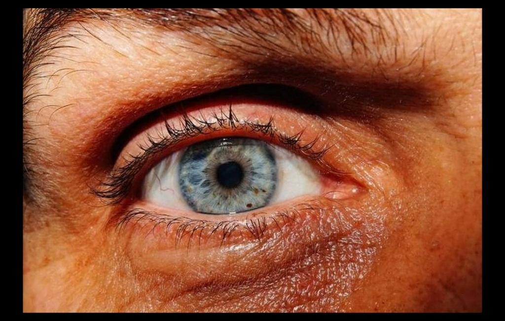 Il était aveugle, ce Breton recouvre partiellement la vue grâce à une technique révolutionnaire Sans6125