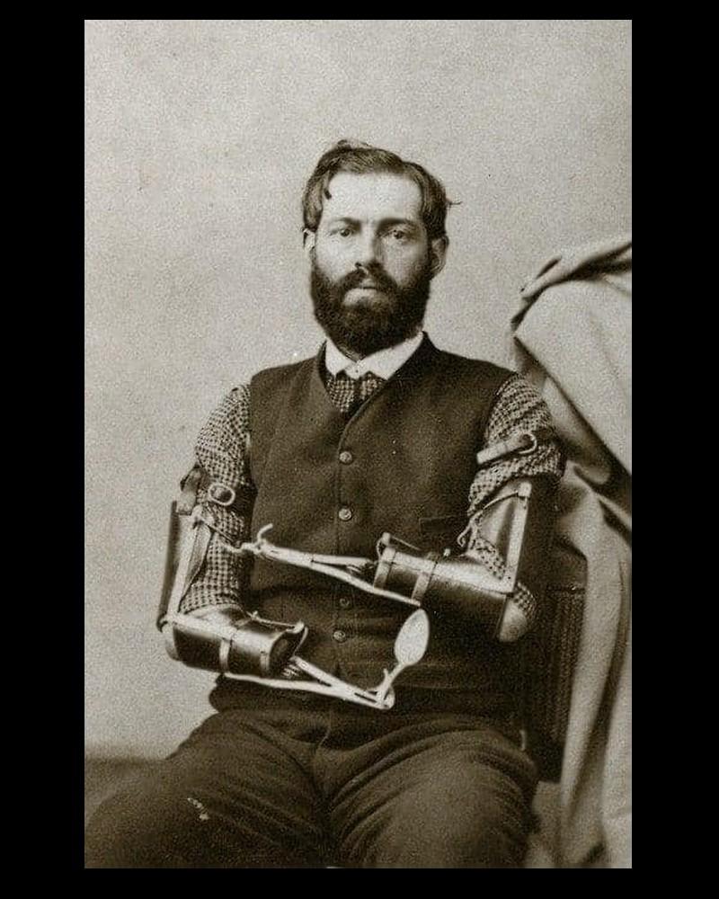 En 1862, le soldat de l'Union Samuel Decker  Sans6313