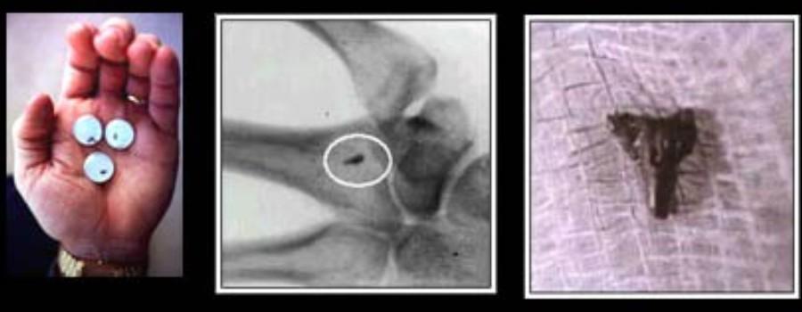 Les implants extraterrestres, réalité ou affabulation ? Sans_576