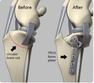 Rupture des ligaments croisés - Page 7 A237c610