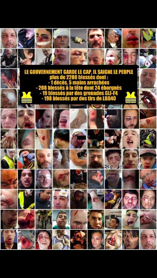 """Ils ont crié """"Allah Akbar"""" et """"****** de Français"""" (Article) Bouche11"""