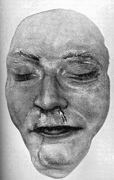 Masque mortuaire d'Himmler... Hhdeat10