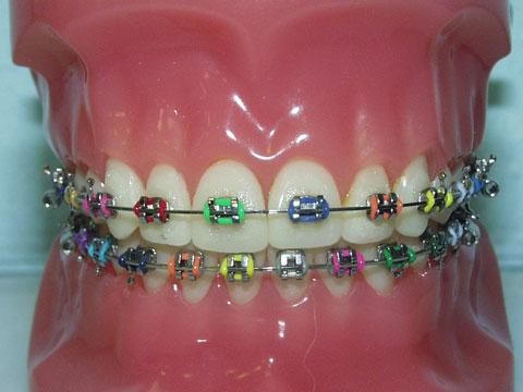 Apa hukum pakai pendakap gigi? Adakah ia sama seperti mengubah kejadian ALLAH seperti tatoo? Metal-10