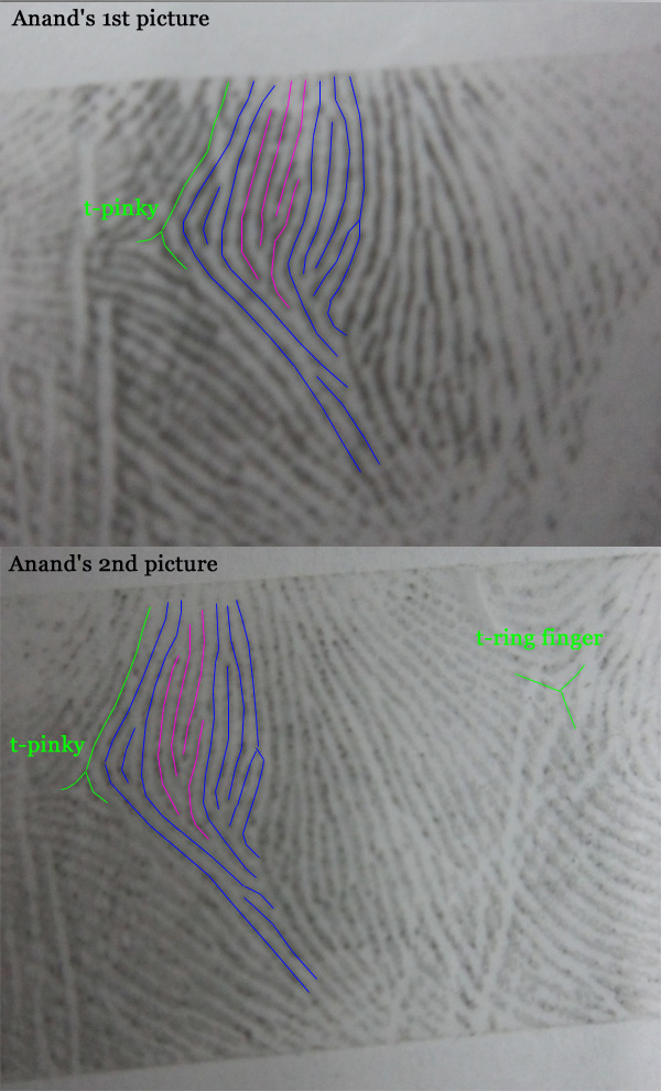 Is this a comb pattern or no pattern in mercury mount  - Page 2 Anand-12