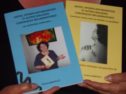 SAPHO et traitements Photo_13