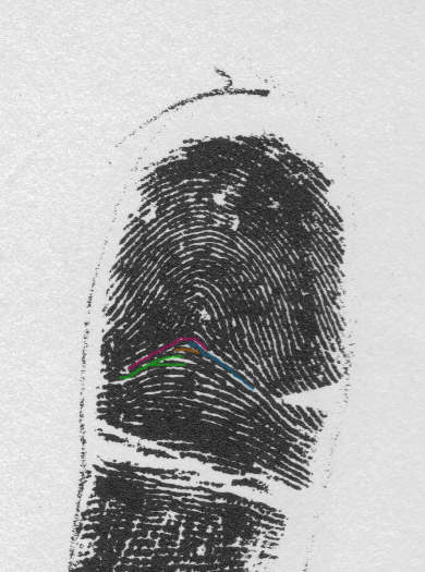 X - WALT DISNEY - One of his fingerprints shows an unusual characteristic! - Page 5 Exampl15