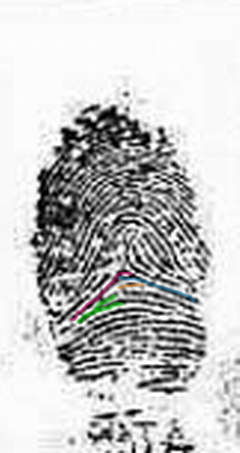 X - WALT DISNEY - One of his fingerprints shows an unusual characteristic! - Page 2 Exampl17