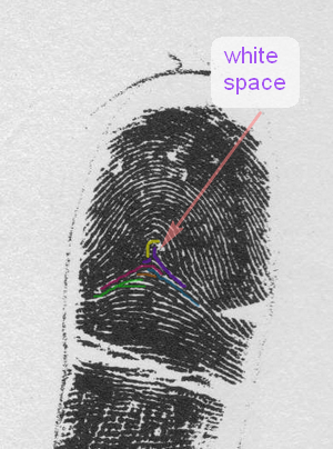 X - WALT DISNEY - One of his fingerprints shows an unusual characteristic! - Page 2 Exampl18