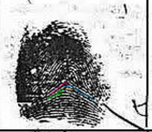 X - WALT DISNEY - One of his fingerprints shows an unusual characteristic! - Page 2 Exampl27