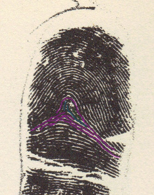 X - WALT DISNEY - One of his fingerprints shows an unusual characteristic! Walt_d10