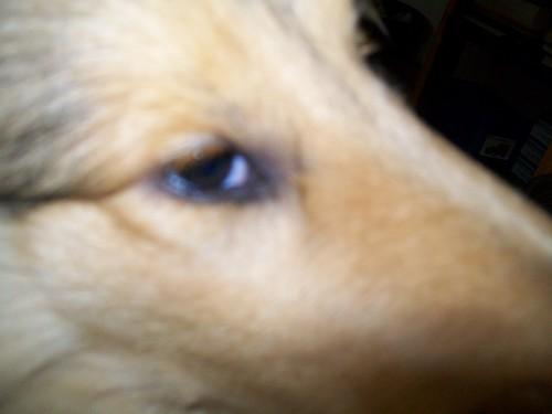 Les yeux. Synthèse des principales anomalies. 100_1010