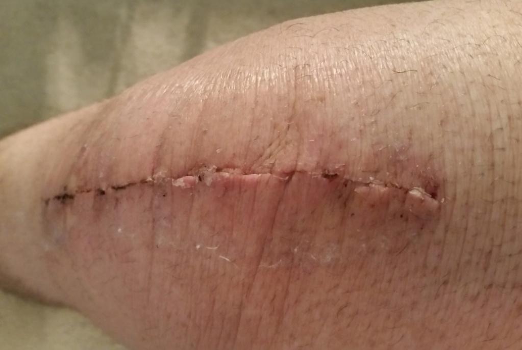 Knee replacement! Knee_010