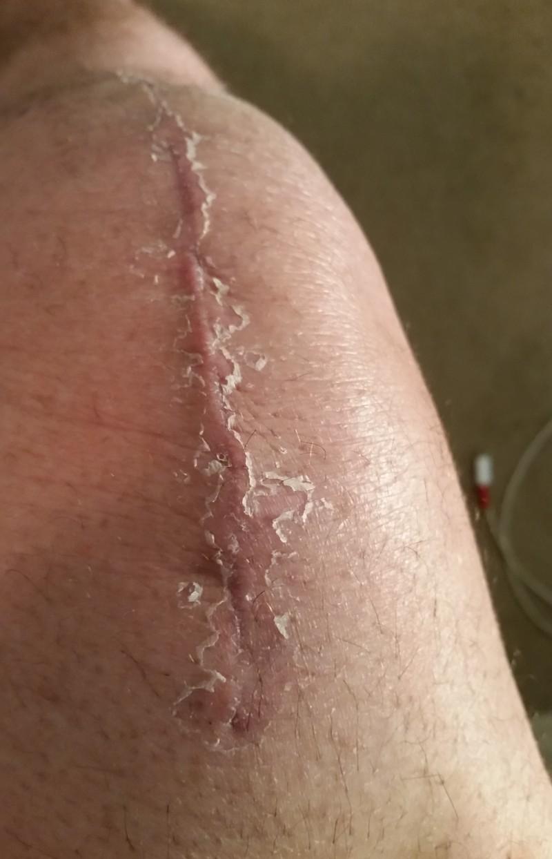 Knee replacement! Knee_012