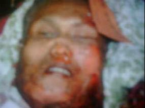 Foto Pelaku Bom Bunuh Diri di Marriott Kepala11