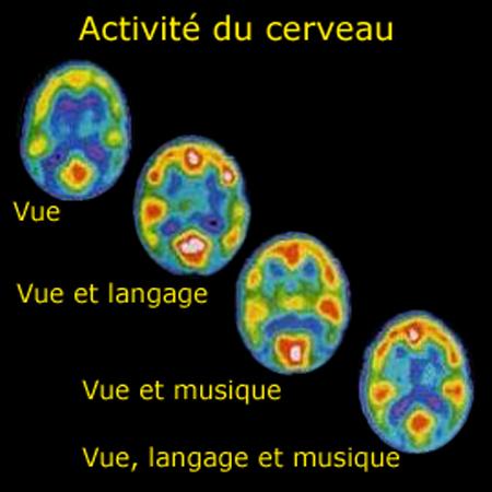 Méditation et cerveau Activi10
