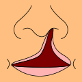 Fente labiale Fente_11
