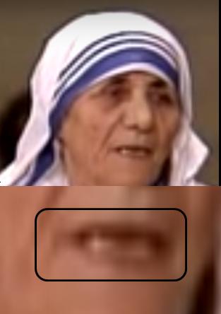 LA MADRE TERESA, UN DEMONIO EN HÁBITO BLANCO - Página 2 Cr28