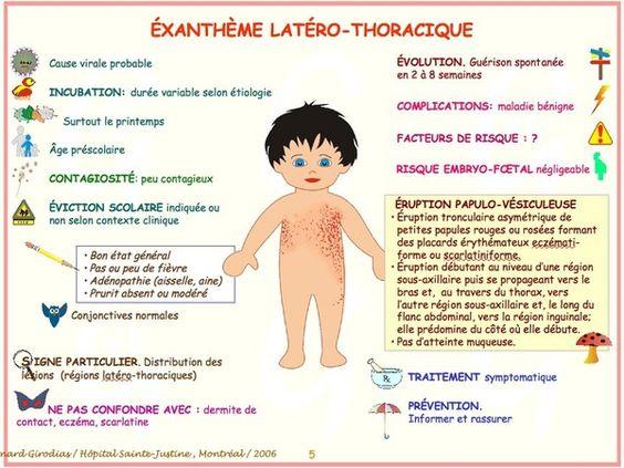 maladies infantiles Exanth10