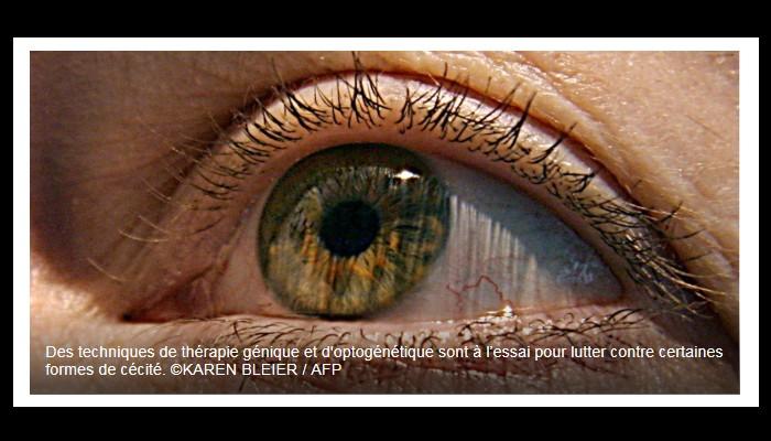 Ce gène qu'on injecte dans l'œil pour restaurer la sensibilité de la rétine Sans_t41