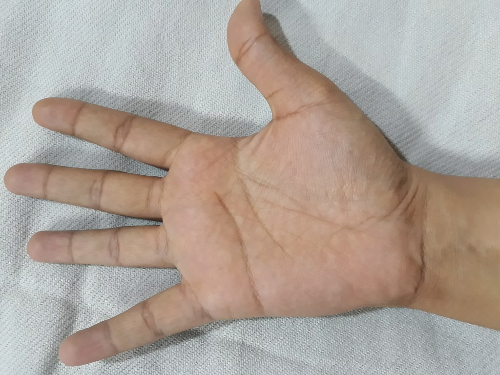 Please read my palm and tell me about my marriage. Thanks Rightp11