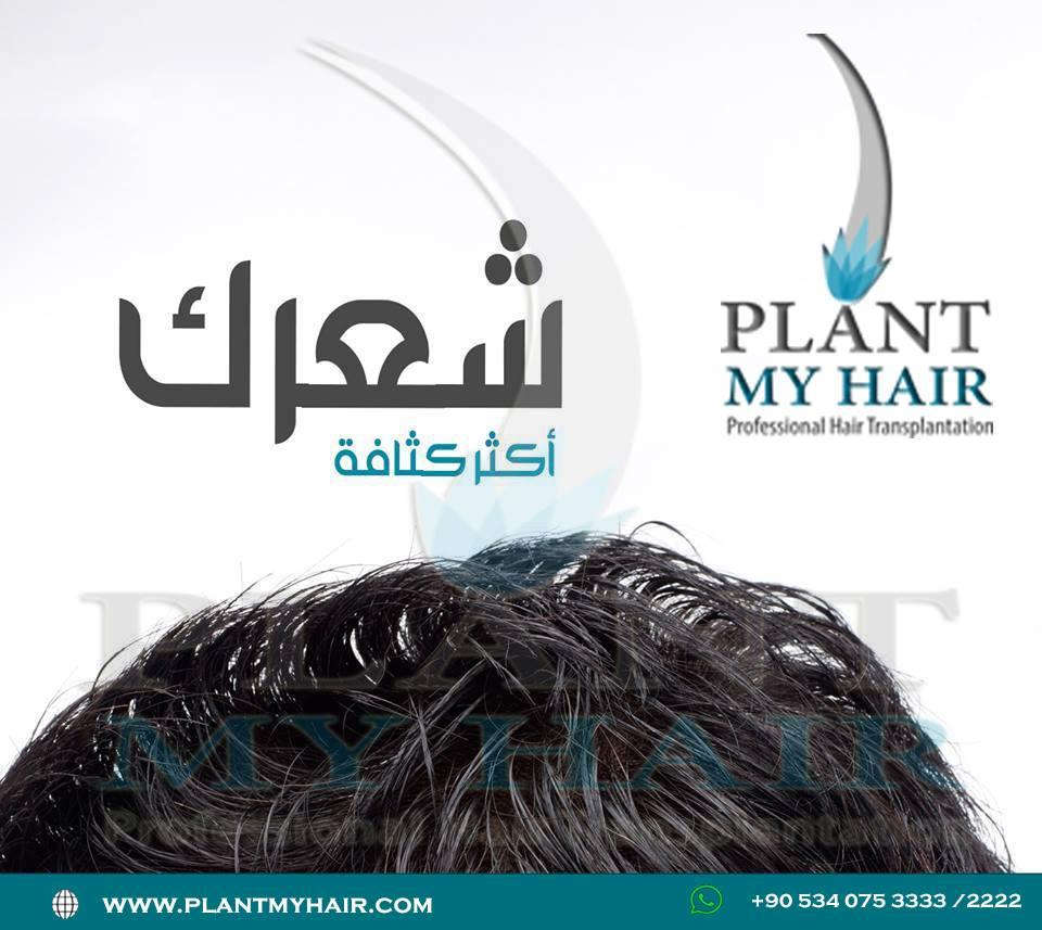 زراعة الشعر في تركيا 13495210