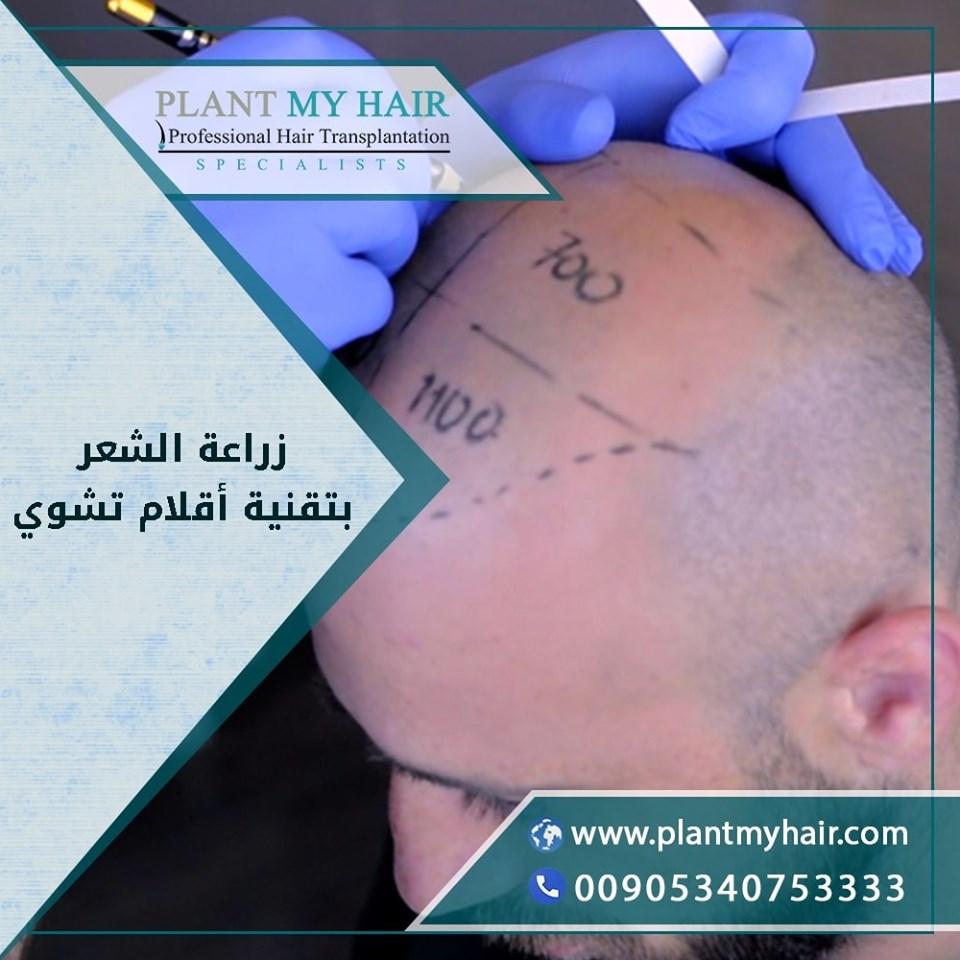 زراعة الشعر بدون ألم  69852510