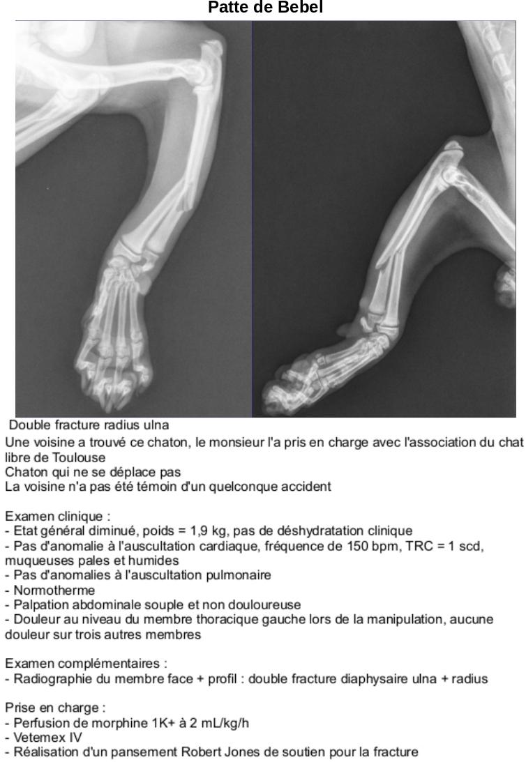 BEBEL fracture patte Rappor10
