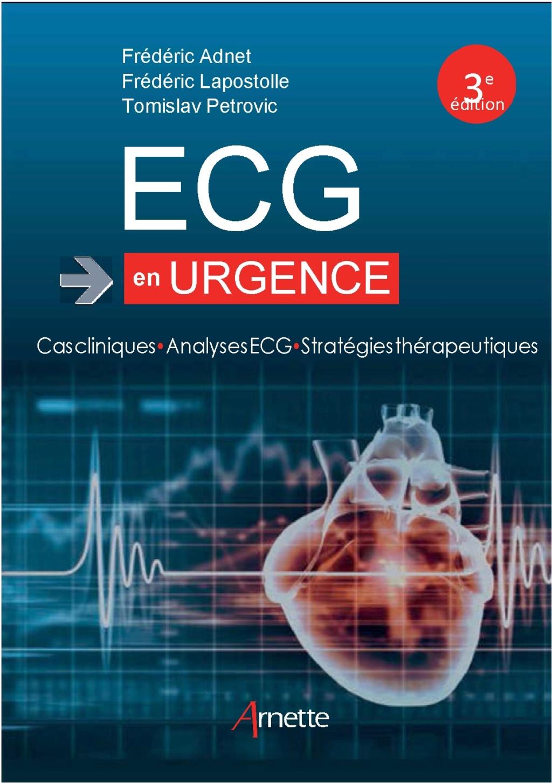 Livres Médicales - ECG en urgence: Cas cliniques - Analyses ECG - Stratégies thérapeutiques 2018 Ecg_en10
