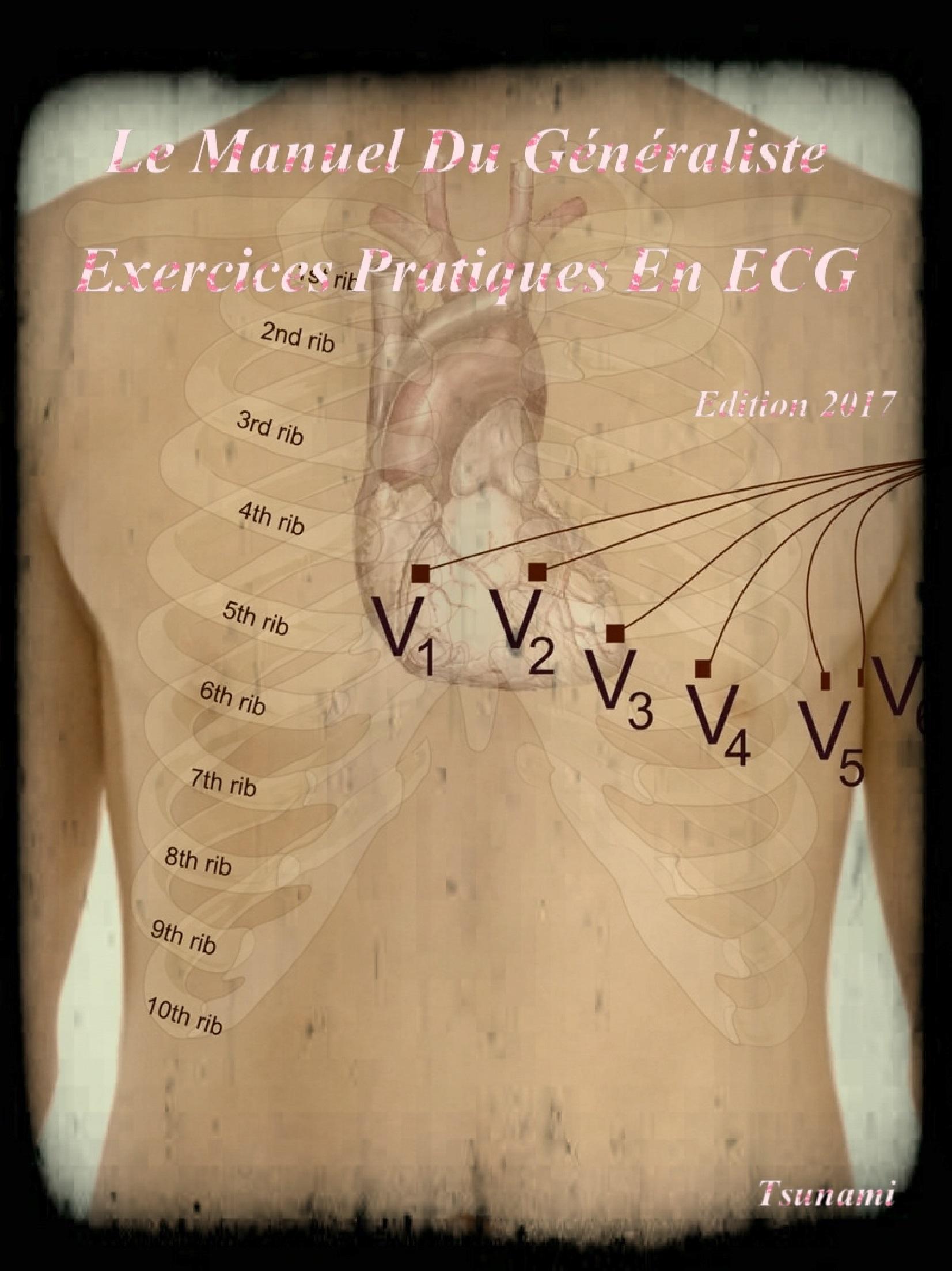 Livres Médicales - Le Manuel Du Généraliste 2017 Exercices Pratiques En ECG Le_man15
