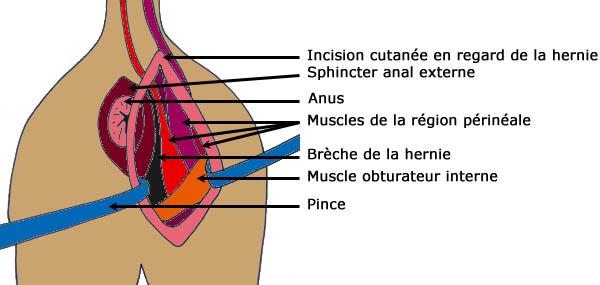 La hernie péninéale Her-110