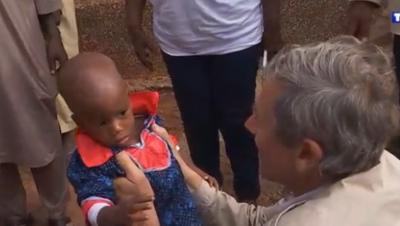 Un an après,les bébés siamois (Hassane et Boubacar) séparés rencontrent leurs sauveurs Siamoi10